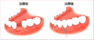 歯を1本失った場合のインプラント治療