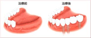 歯を何本か失った場合のインプラント治療