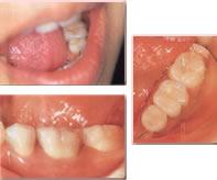 奥歯の審美治療後
